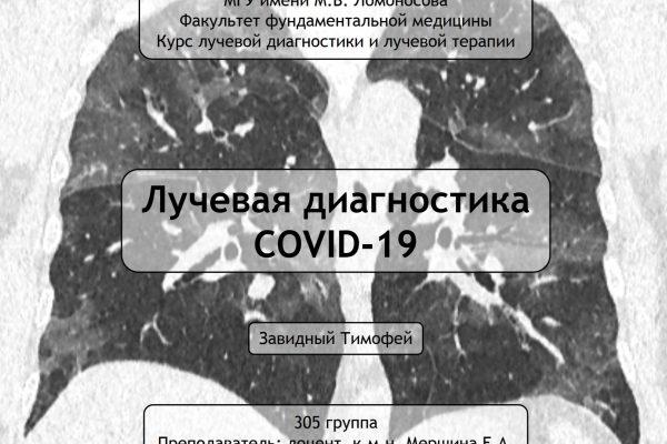 Лекция по лучевой диагностике COVID-19 от студента 3 курса ФФМ МГУ